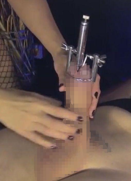 ペニスストレッチャーで尿道口を開かれて尿道ブジーが挿入完了したところ