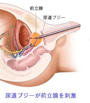 尿道ブジーが前立腺を刺激する様子